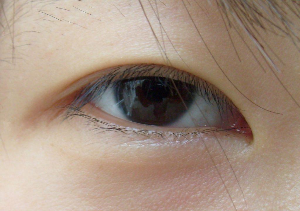Porque os orientais têm olhos rasgados?